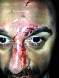 Stafylides-homophobic-attack-Athens-b